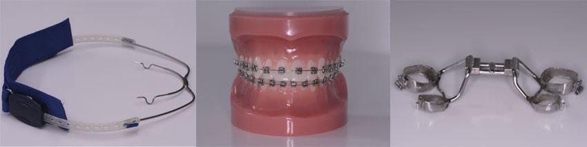 losse tanden bij volwassenen